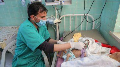 Photo of Yemen: 'Toxic mix' imperils lives of under-fives with acute malnutrition